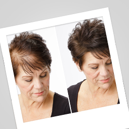Causes of Hair Loss In Women 2