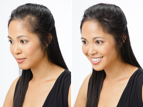 Causes of Hair Loss In Women 1